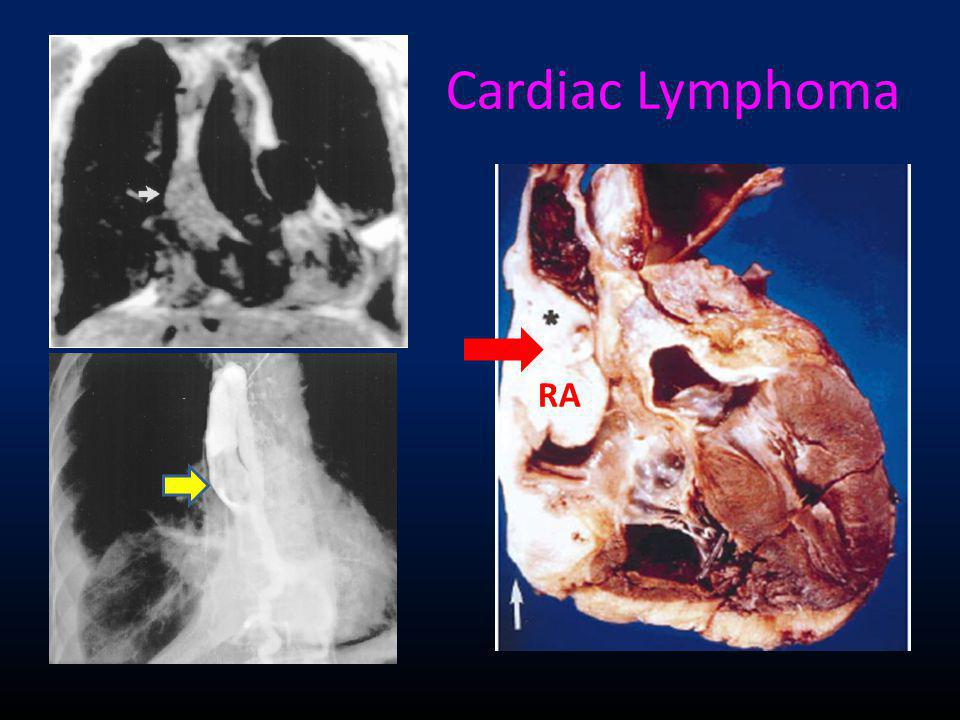 Cardiac Lymphoma RA