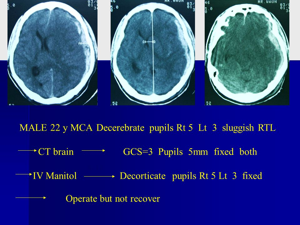 MALE 22 y MCA Decerebrate pupils Rt 5 Lt 3 sluggish RTL CT brain GCS=3 Pupils 5mm fixed both IV Manitol Decorticate pupils Rt 5 Lt 3 fixed Operate but