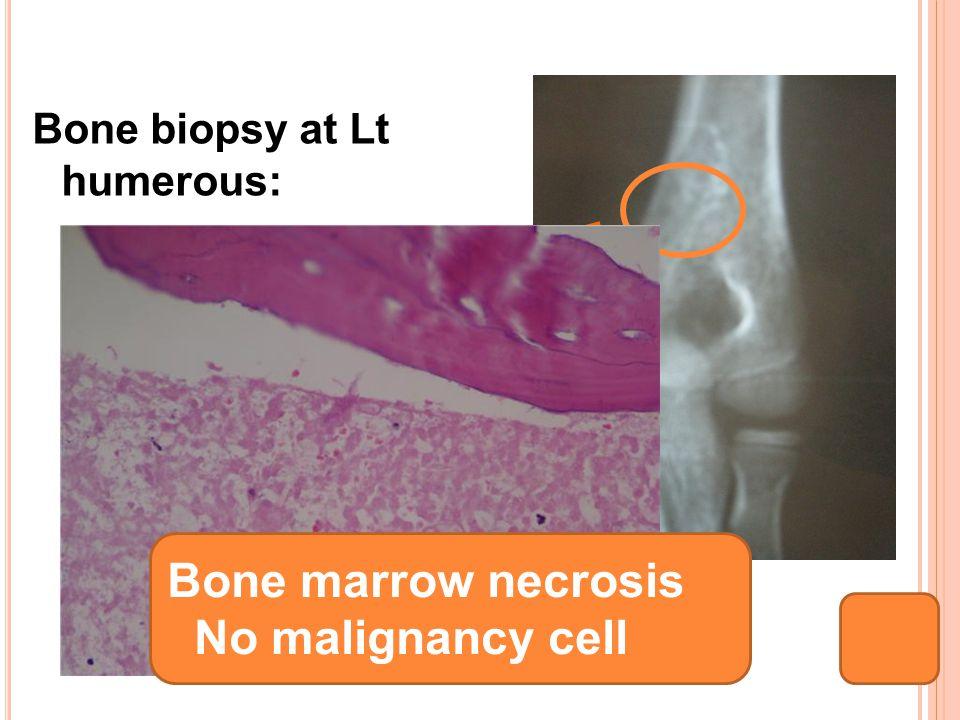 Bone biopsy at Lt humerous: Bone marrow necrosis No malignancy cell