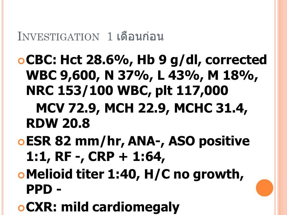 I NVESTIGATION 1 เดือนก่อน CBC: Hct 28.6%, Hb 9 g/dl, corrected WBC 9,600, N 37%, L 43%, M 18%, NRC 153/100 WBC, plt 117,000 MCV 72.9, MCH 22.9, MCHC