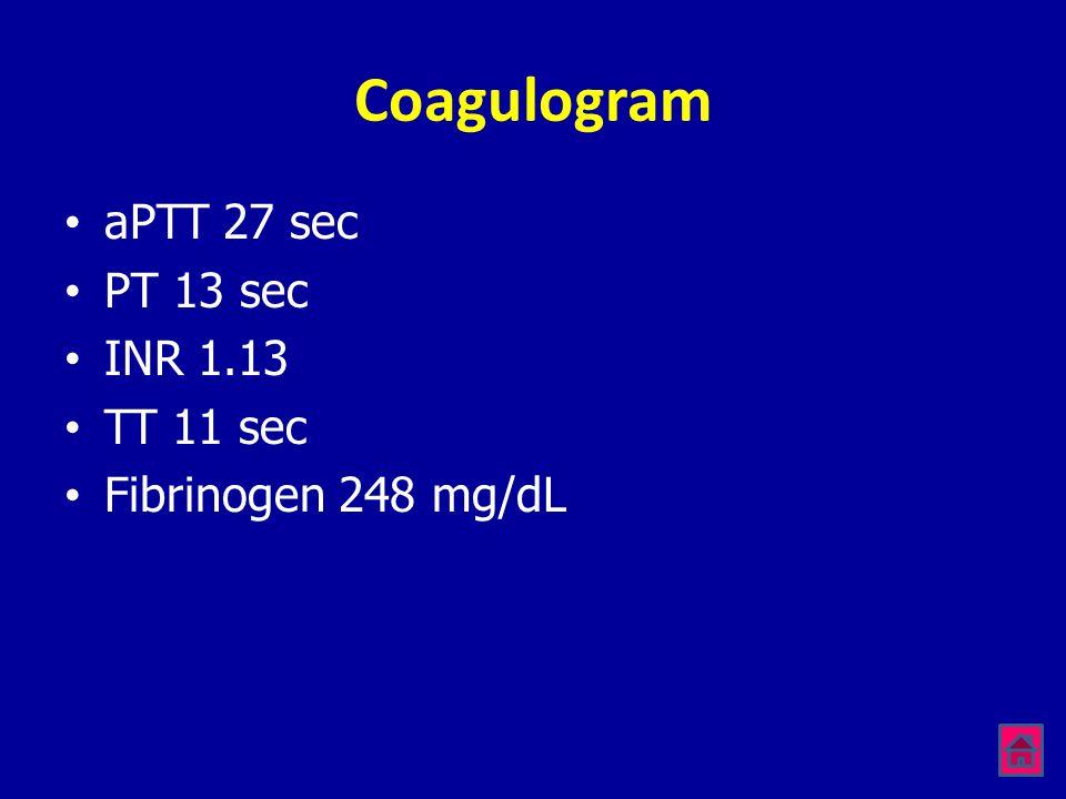 Coagulogram •aPTT 27 sec •PT 13 sec •INR 1.13 •TT 11 sec •Fibrinogen 248 mg/dL