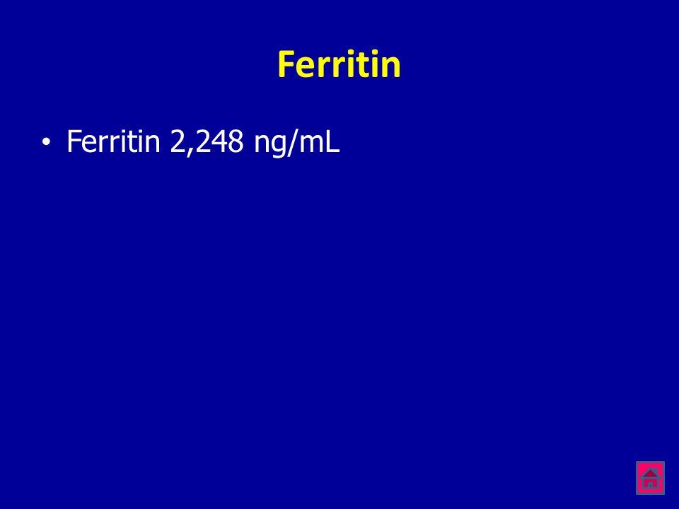 Ferritin •Ferritin 2,248 ng/mL