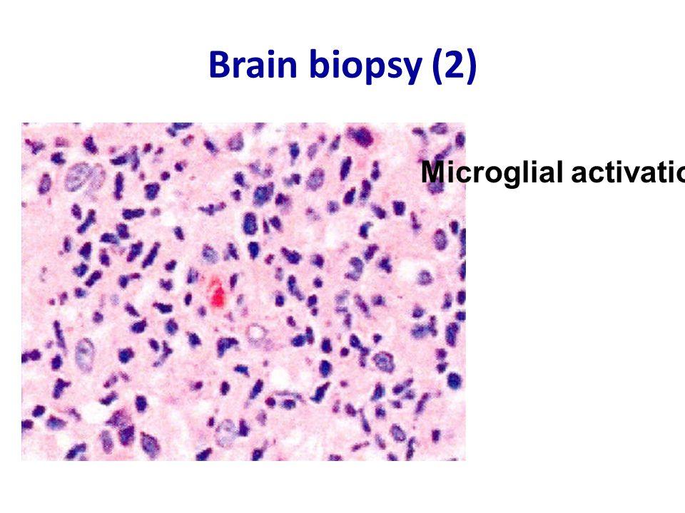 Brain biopsy (2) Microglial activation