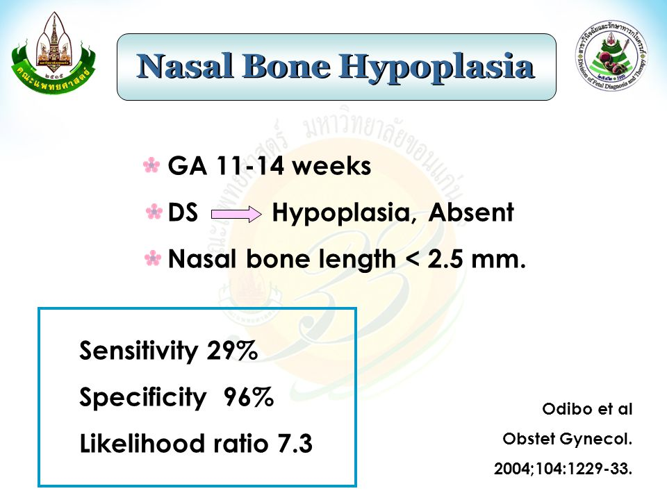 GA 11-14 weeks DS Hypoplasia, Absent Nasal bone length < 2.5 mm. Sensitivity 29% Specificity 96% Likelihood ratio 7.3 Odibo et al Obstet Gynecol. 2004