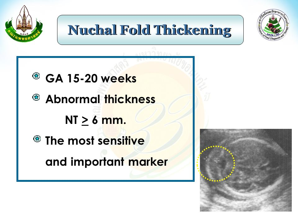 GA 15-20 weeks Abnormal thickness NT > 6 mm. The most sensitive and important marker