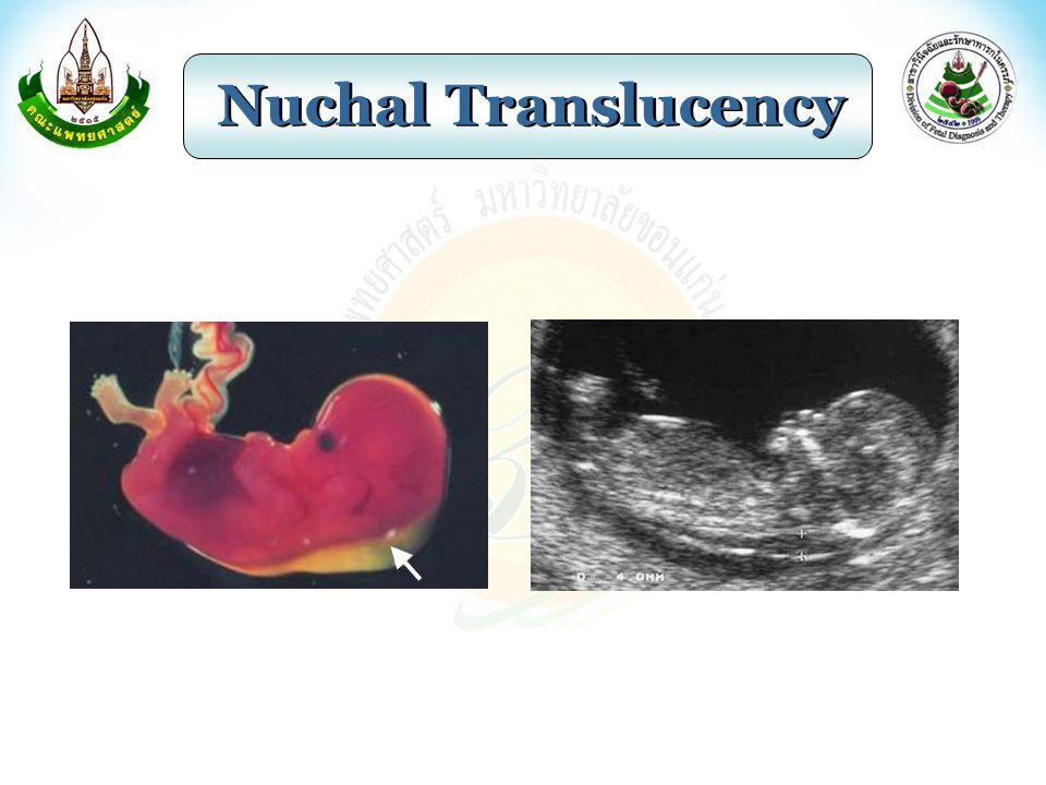 Genetic Sonogram Prenasal thickness Nuchal fold thickening Hyperechoic bowel Echogenic intracardiac focus Shortened humerus and femur Widened iliac angle Structural anomalies