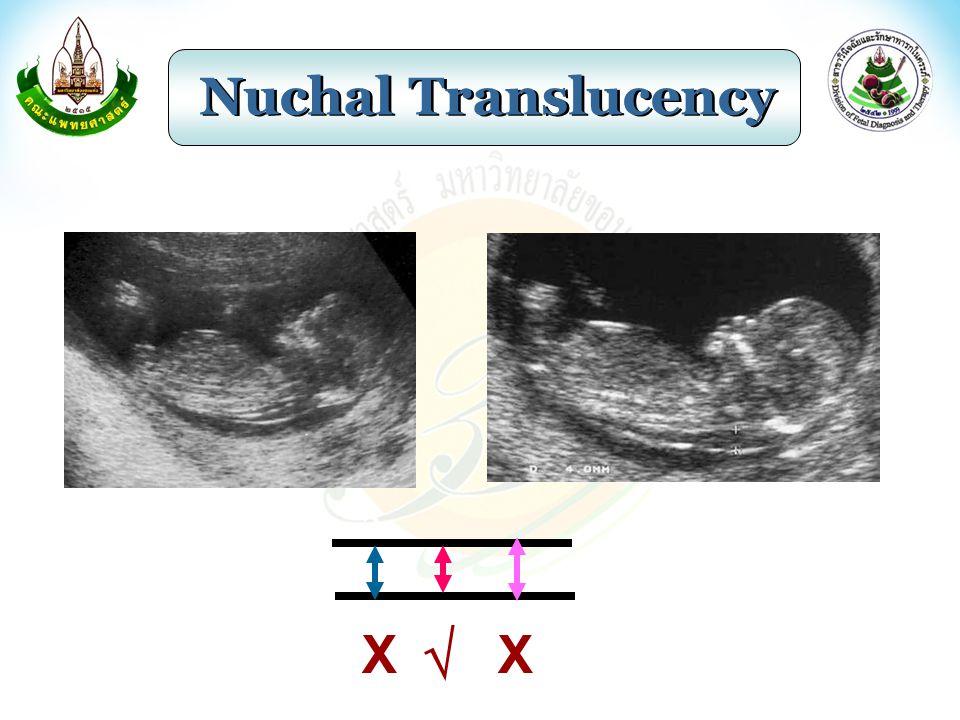 Nuchal Translucency  XX