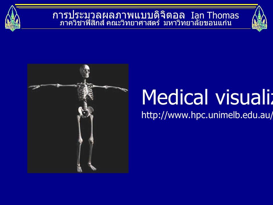 การประมวลผลภาพแบบดิจิตอล Ian Thomas ภาควิชาฟิสิกส์ คณะวิทยาศาสตร์ มหาวิทยาลัยขอนแก่น Medical visualization http://www.hpc.unimelb.edu.au/cvf/overview.