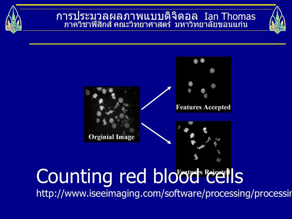 การประมวลผลภาพแบบดิจิตอล Ian Thomas ภาควิชาฟิสิกส์ คณะวิทยาศาสตร์ มหาวิทยาลัยขอนแก่น Counting red blood cells http://www.iseeimaging.com/software/proc