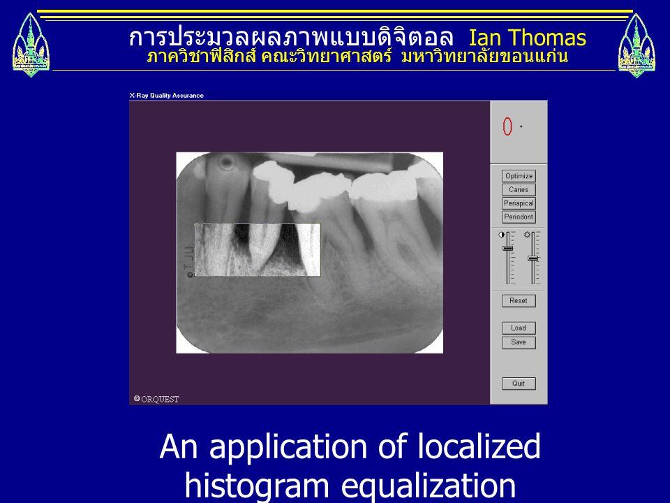 การประมวลผลภาพแบบดิจิตอล Ian Thomas ภาควิชาฟิสิกส์ คณะวิทยาศาสตร์ มหาวิทยาลัยขอนแก่น An application of localized histogram equalization
