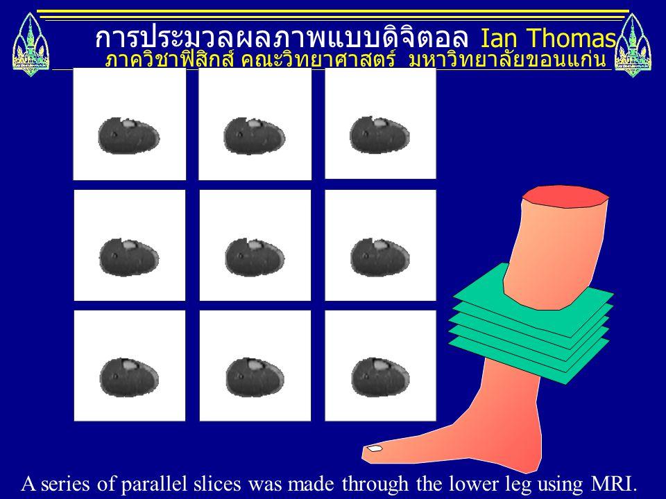 การประมวลผลภาพแบบดิจิตอล Ian Thomas ภาควิชาฟิสิกส์ คณะวิทยาศาสตร์ มหาวิทยาลัยขอนแก่น A series of parallel slices was made through the lower leg using