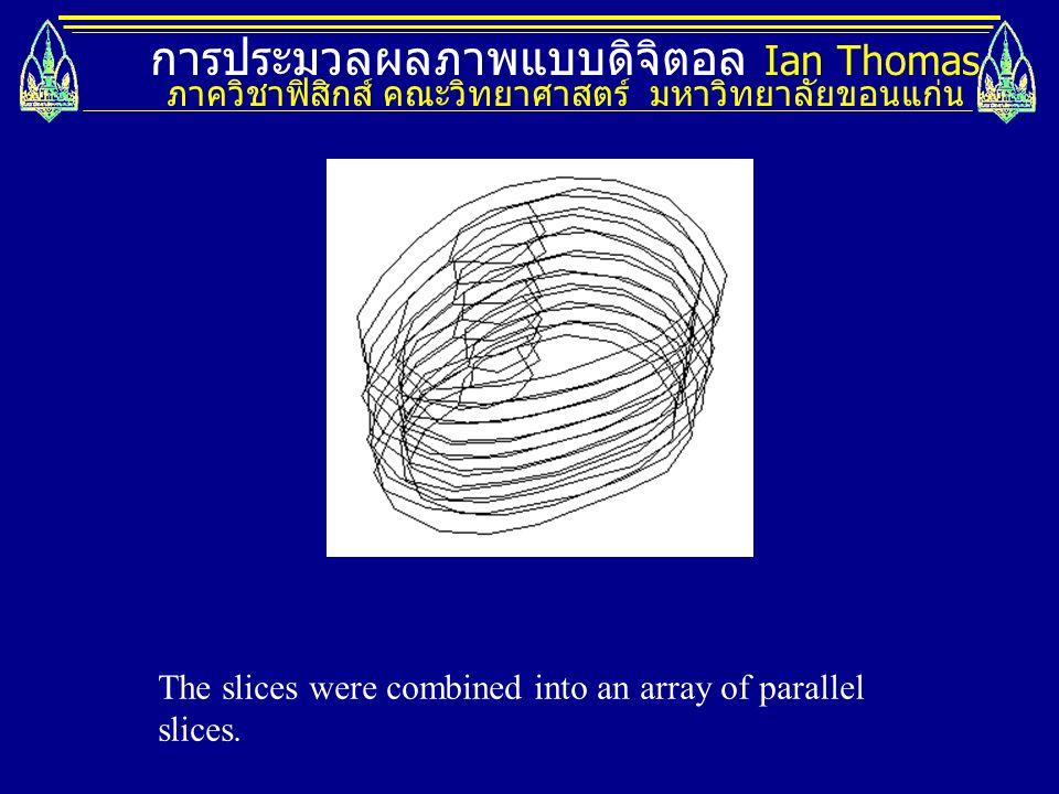 การประมวลผลภาพแบบดิจิตอล Ian Thomas ภาควิชาฟิสิกส์ คณะวิทยาศาสตร์ มหาวิทยาลัยขอนแก่น The slices were combined into an array of parallel slices.