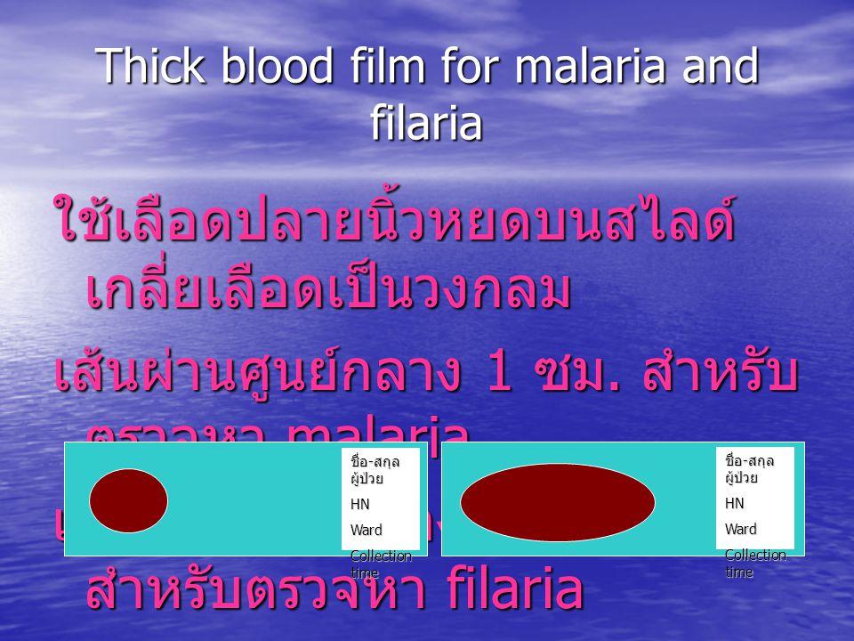 Thick blood film for malaria and filaria ใช้เลือดปลายนิ้วหยดบนสไลด์ เกลี่ยเลือดเป็นวงกลม เส้นผ่านศูนย์กลาง 1 ซม. สำหรับ ตรวจหา malaria เส้นผ่านศูนย์กล