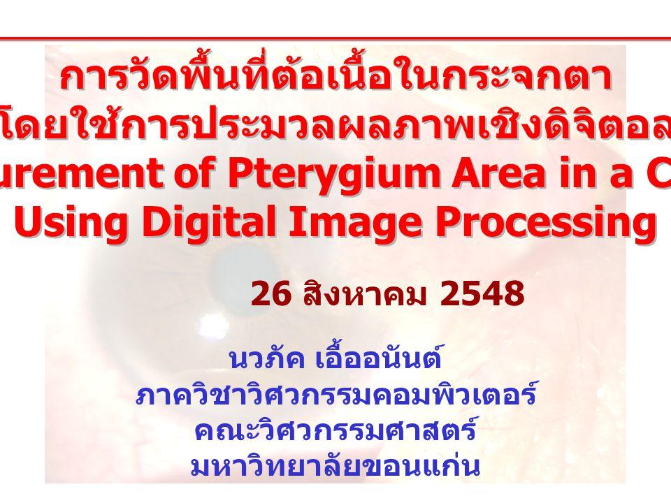 การวัดพื้นที่ต้อเนื้อในกระจกตา โดยใช้การประมวลผลภาพเชิงดิจิตอล Measurement of Pterygium Area in a Cornea Using Digital Image Processing การวัดพื้นที่ต