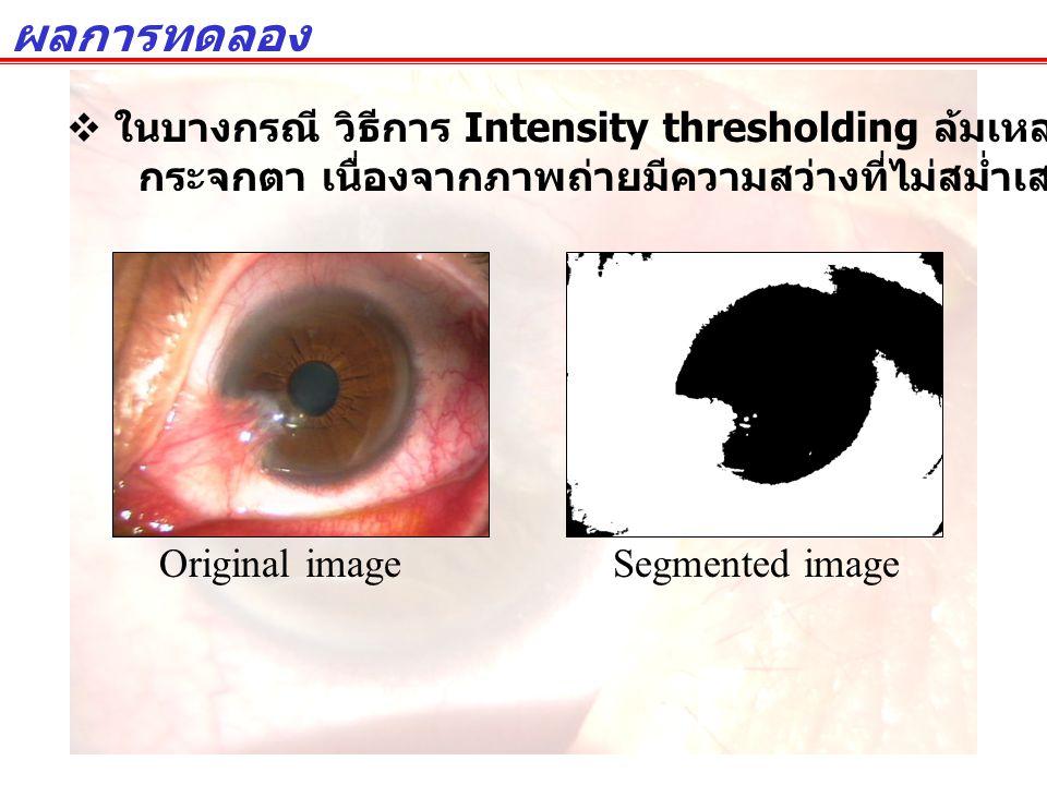ผลการทดลอง  ในบางกรณี วิธีการ Intensity thresholding ล้มเหลวในการแยกแยะพื้นที่ กระจกตา เนื่องจากภาพถ่ายมีความสว่างที่ไม่สม่ำเสมอ Original imageSegmen
