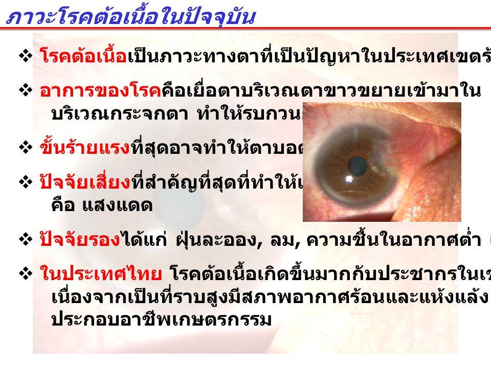 ภาวะโรคต้อเนื้อในปัจจุบัน  โรคต้อเนื้อเป็นภาวะทางตาที่เป็นปัญหาในประเทศเขตร้อนหลายประเทศ  อาการของโรคคือเยื่อตาบริเวณตาขาวขยายเข้ามาใน บริเวณกระจกตา