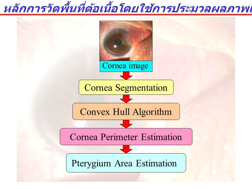 การแยกแยะพื้นที่กระจกตา  ลักษณะของต้อเนื้อ : ต้อเนื้อกับตาขาวจะมีลักษณะที่ใกล้เคียงกัน ขอบเขต ของพื้นที่ของต้อเนื้อคลุมเครือไม่ชัดเจน  เราไม่อาจจะแยกแยะพื้นที่ของต้อเนื้อ ออกจากพื้นที่ของตาขาวได้โดยตรง  งานวิจัยนี้หาพื้นที่ต้อเนื้อทางอ้อมโดยใช้วิธีการประมาณเส้นรอบวงของ กระจกตาแทน พื้นที่ของกระจกตาสามารถแยกแยะได้ง่ายกว่า เนื่องจาก กระจกมีสีที่แตกต่างจากตาขาวอย่างชัดเจน