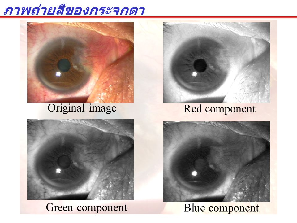 Original image Red component Blue component Green component ภาพถ่ายสีของกระจกตา