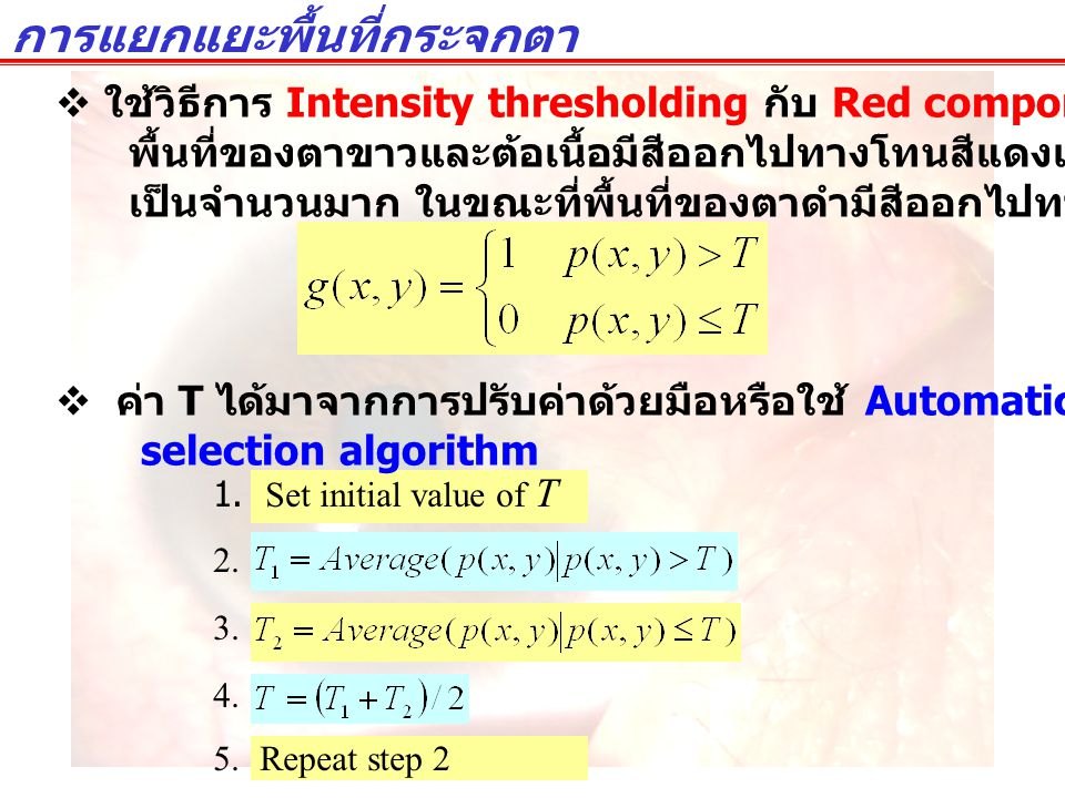 1. Set initial value of T 2. 3. 4. 5. Repeat step 2 การแยกแยะพื้นที่กระจกตา  ใช้วิธีการ Intensity thresholding กับ Red component ของภาพเนื่องจาก พื้น