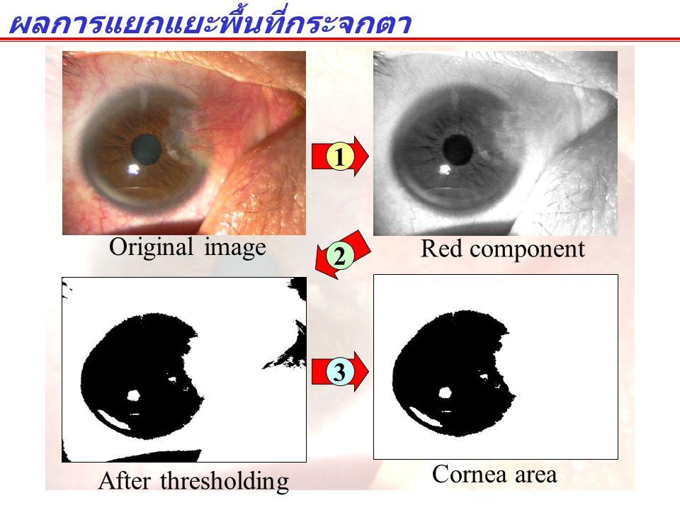 ผลการแยกแยะพื้นที่กระจกตา Original image Red component Cornea area After thresholding 1 3 2
