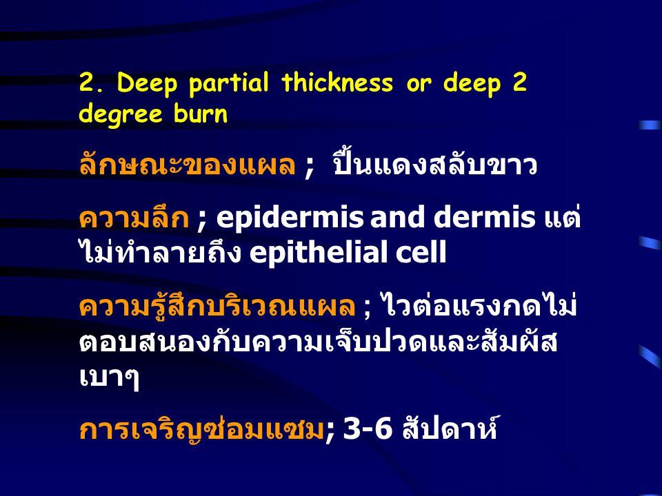 2. Deep partial thickness or deep 2 degree burn ลักษณะของแผล ; ปื้นแดงสลับขาว ความลึก ; epidermis and dermis แต่ ไม่ทำลายถึง epithelial cell ความรู้สึ