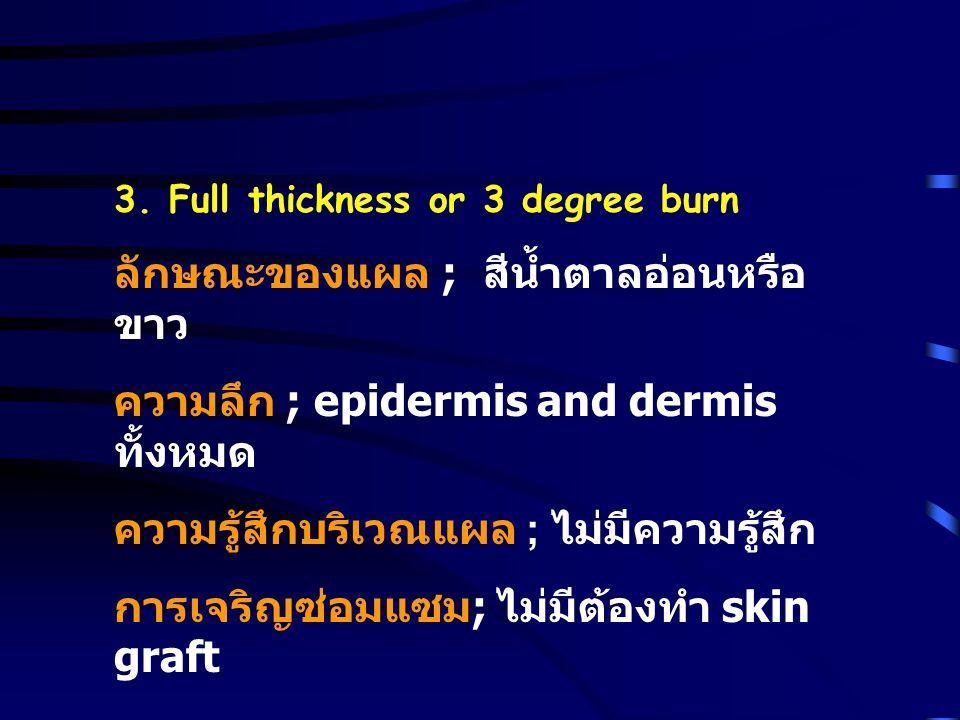 3. Full thickness or 3 degree burn ลักษณะของแผล ; สีน้ำตาลอ่อนหรือ ขาว ความลึก ; epidermis and dermis ทั้งหมด ความรู้สึกบริเวณแผล ; ไม่มีความรู้สึก กา