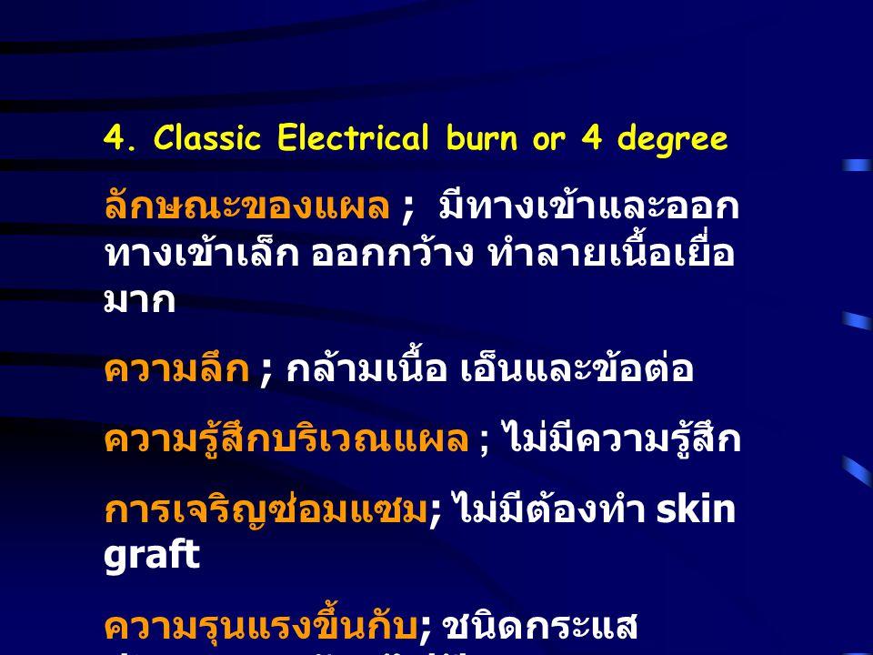 4. Classic Electrical burn or 4 degree ลักษณะของแผล ; มีทางเข้าและออก ทางเข้าเล็ก ออกกว้าง ทำลายเนื้อเยื่อ มาก ความลึก ; กล้ามเนื้อ เอ็นและข้อต่อ ความ