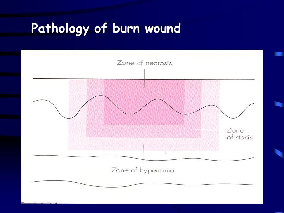 Pathology of burn wound