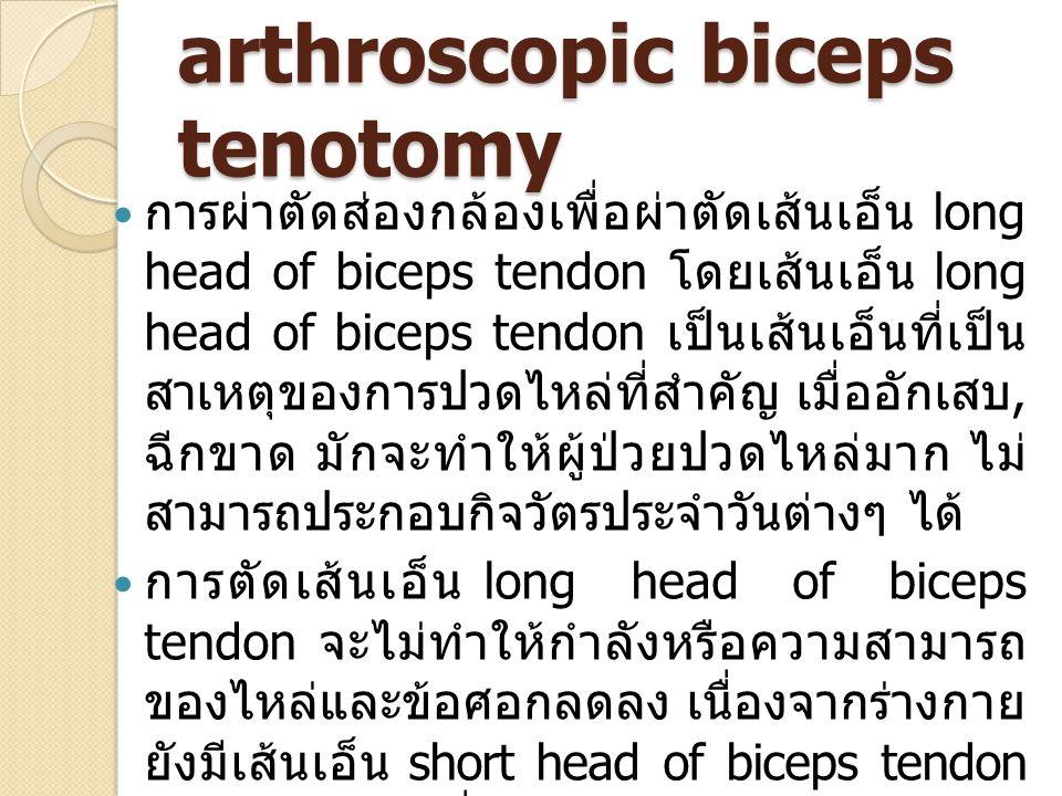 arthroscopic biceps tenotomy การผ่าตัดส่องกล้องเพื่อผ่าตัดเส้นเอ็น long head of biceps tendon โดยเส้นเอ็น long head of biceps tendon เป็นเส้นเอ็นที่เป