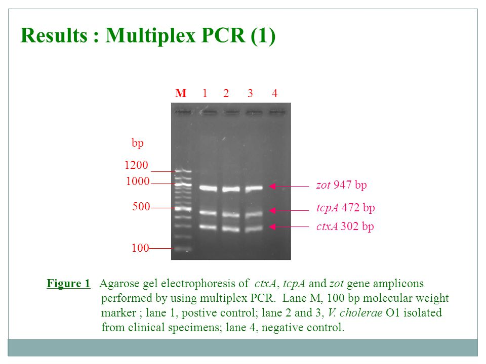 Results :Multiplex PCR (2) toxR 779 bp ompU 869 bp ace 600 bp 100 1200 500 bp M 1 2 3 4 1000 Figure 2 Agarose gel electrophoresis of ace, ompU and toxR gene amplicons performed by using multiplex PCR.