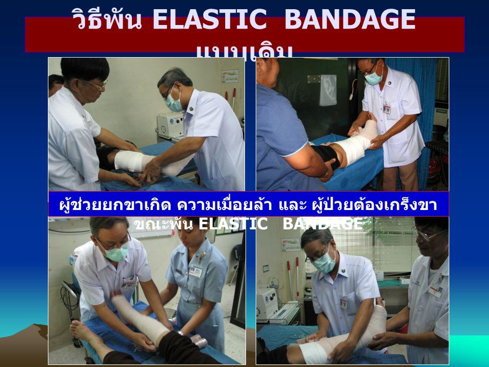 วิธีพัน ELASTIC BANDAGE แบบเดิม ผู้ช่วยยกขาเกิด ความเมื่อยล้า และ ผู้ป่วยต้องเกร็งขา ขณะพัน ELASTIC BANDAGE