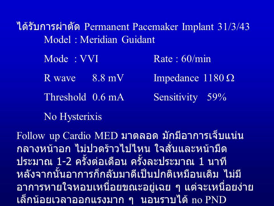 ได้รับการผ่าตัด Permanent Pacemaker Implant 31/3/43 Model : Meridian Guidant Mode : VVIRate : 60/min R wave 8.8 mVImpedance 1180  Threshold 0.6 mASensitivity 59% No Hysterixis Follow up Cardio MED มาตลอด มักมีอาการเจ็บแน่น กลางหน้าอก ไม่ปวดร้าวไปไหน ใจสั่นและหน้ามืด ประมาณ 1-2 ครั้งต่อเดือน ครั้งละประมาณ 1 นาที หลังจากนั้นอาการก็กลับมาดีเป็นปกติเหมือนเดิม ไม่มี อาการหายใจหอบเหนื่อยขณะอยู่เฉย ๆ แต่จะเหนื่อยง่าย เล็กน้อยเวลาออกแรงมาก ๆ นอนราบได้ no PND