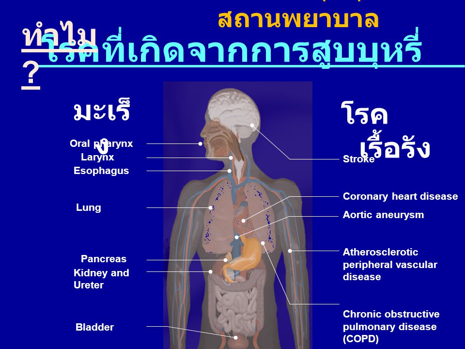 โรคที่เกิดจากการสูบบุหรี่ มะเร็ ง Lung Larynx Esophagus Bladder Kidney and Ureter Pancreas Oral pharynx Stroke Coronary heart disease Aortic aneurysm