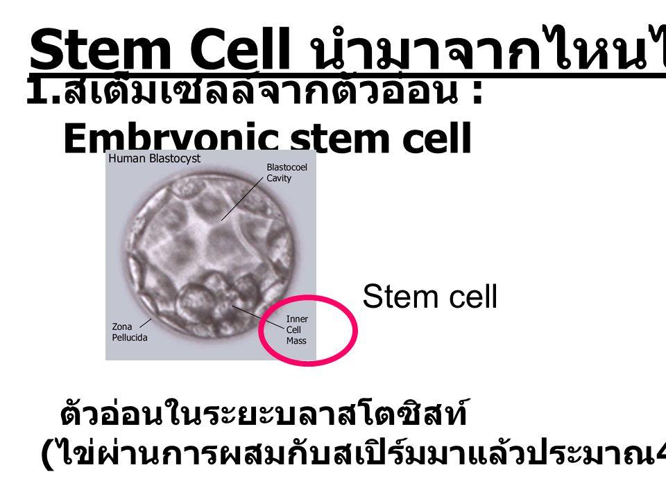 Stem Cell นำมาจากไหนได้บ้าง 1. สเต็มเซลล์จากตัวอ่อน : Embryonic stem cell ตัวอ่อนในระยะบลาสโตซิสท์ ( ไข่ผ่านการผสมกับสเปิร์มมาแล้วประมาณ 4-5 วัน ) Ste