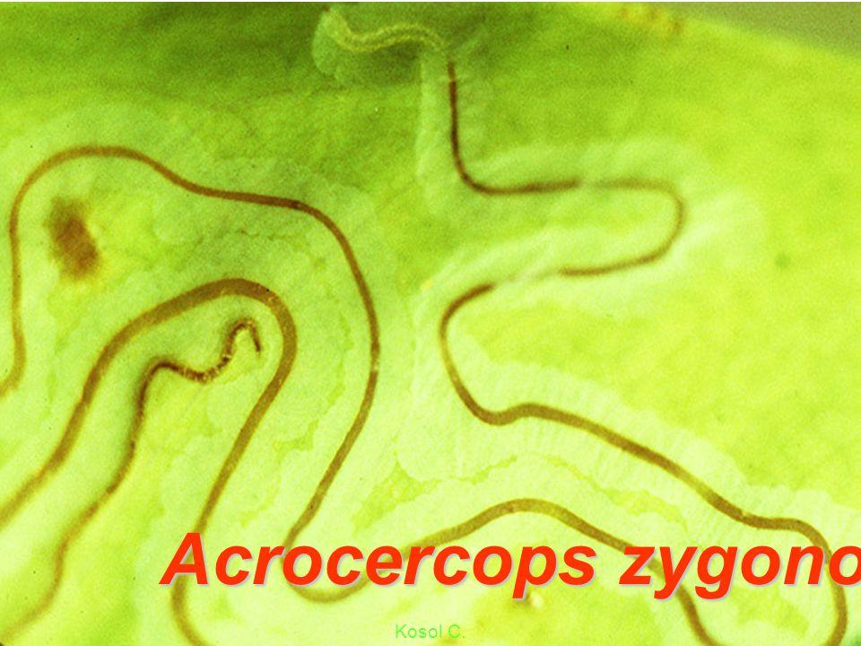 Acrocercops syngramma Symptom mgs