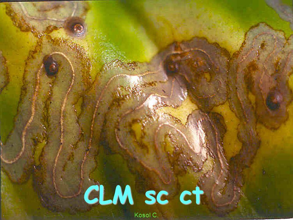 CLM s