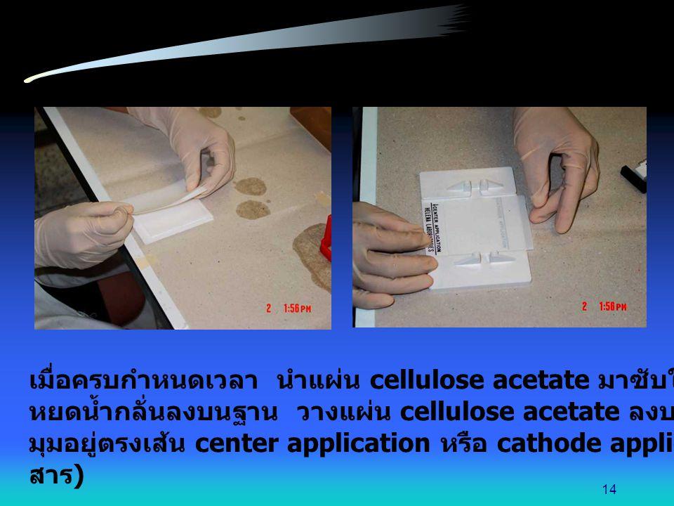 เมื่อครบกำหนดเวลา นำแผ่น cellulose acetate มาซับให้แห้งโดยใช้กระดาษกรอง หยดน้ำกลั่นลงบนฐาน วางแผ่น cellulose acetate ลงบนฐานนี้ โดยให้ด้านที่ตัด มุมอย