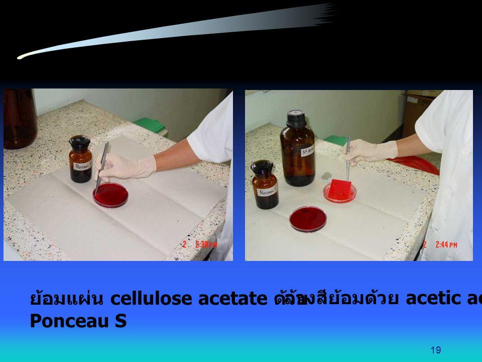 ย้อมแผ่น cellulose acetate ด้วย Ponceau S ล้างสีย้อมด้วย acetic acid 19