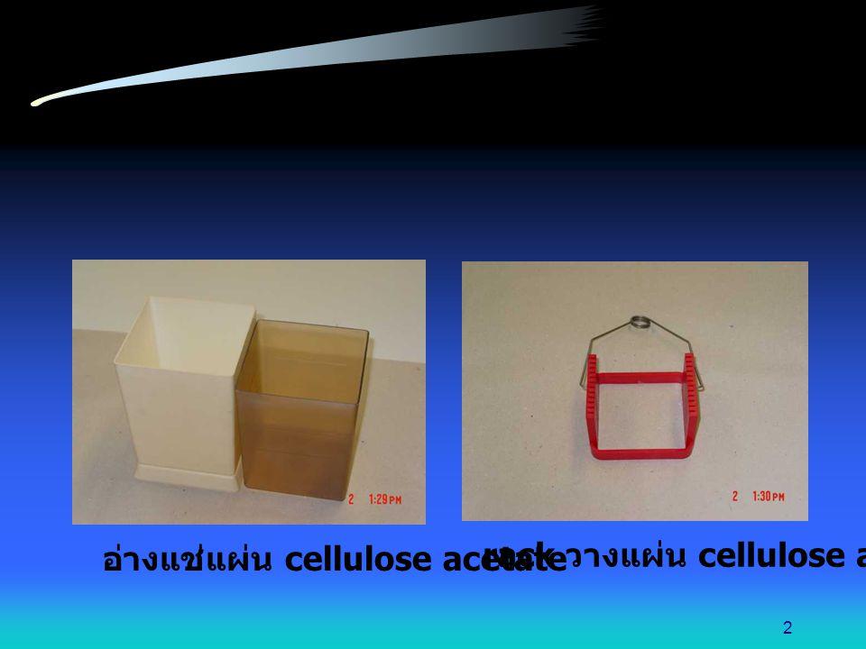 นำแผ่น cellulose acetate มาแช่ในสารละลายบัฟเฟอร์ ตามเวลาที่กำหนด 13