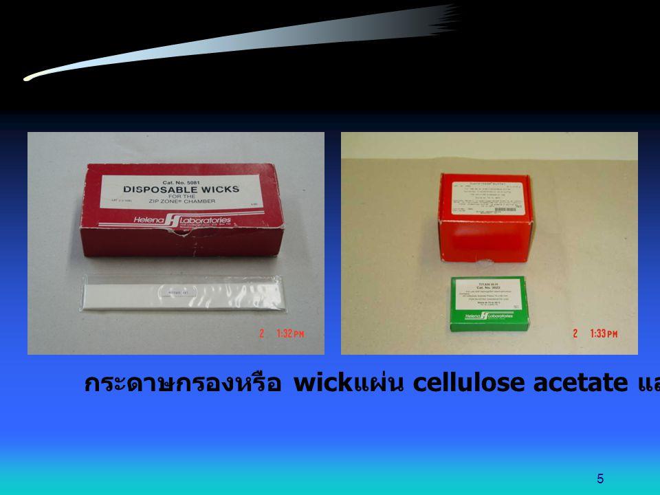 นำแผ่น cellulose acetate มาวางพาดระหว่างอ่างทั้ง 2 โดยวางคว่ำหน้า ใช้แผ่นสไลด์กดทับแผ่น cellulose acetate เพื่อให้สัมผัสกับกระดาษกรอง 16