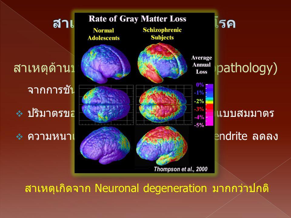 จากการชันสูตรสมองของผู้ป่วย พบว่า  ปริมาตรของสมอง (Brain volume) ลดลงแบบสมมาตร  ความหนาแน่นของ neuron, axon และ dendrite ลดลง สาเหตุด้านประสาทพยาธิว