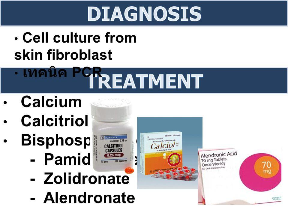 Calcium Calcitriol Bisphosphonate - Pamidronate - Zolidronate - Alendronate Cell culture from skin fibroblast เทคนิค PCR