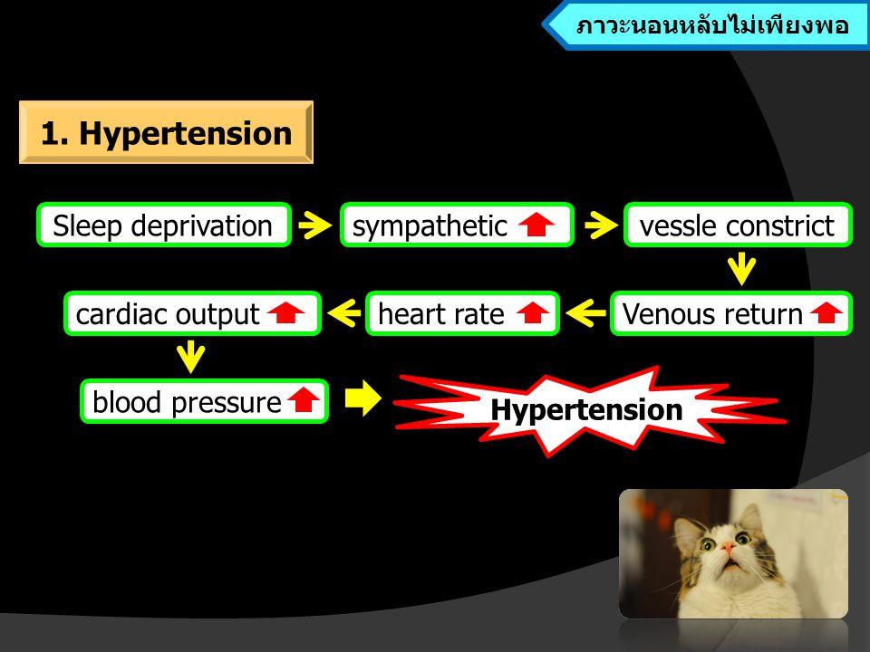 Hypertension Sleep deprivation Venous return vessle constrictsympathetic blood pressure heart ratecardiac output ภาวะนอนหลับไม่เพียงพอ 1.