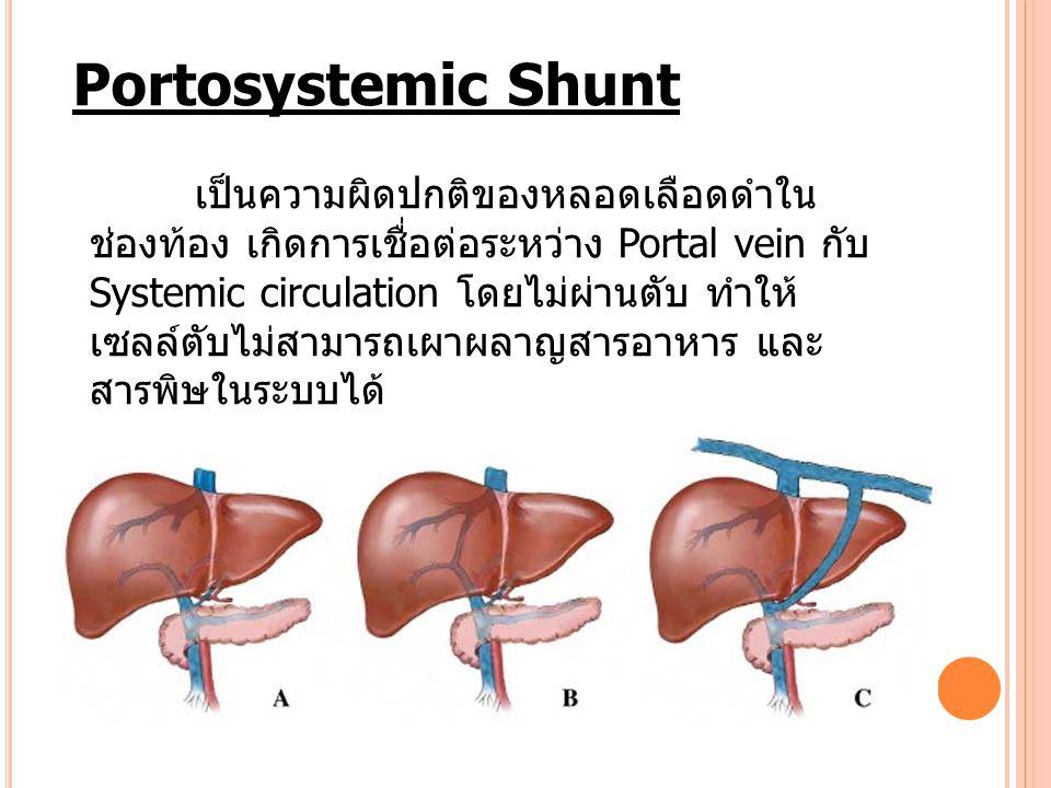 Portosystemic Shunt เป็นความผิดปกติของหลอดเลือดดำใน ช่องท้อง เกิดการเชื่อต่อระหว่าง Portal vein กับ Systemic circulation โดยไม่ผ่านตับ ทำให้ เซลล์ตับไ