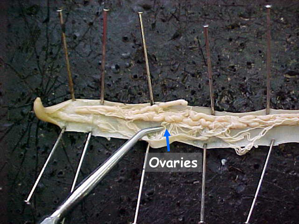 23 Ovaries