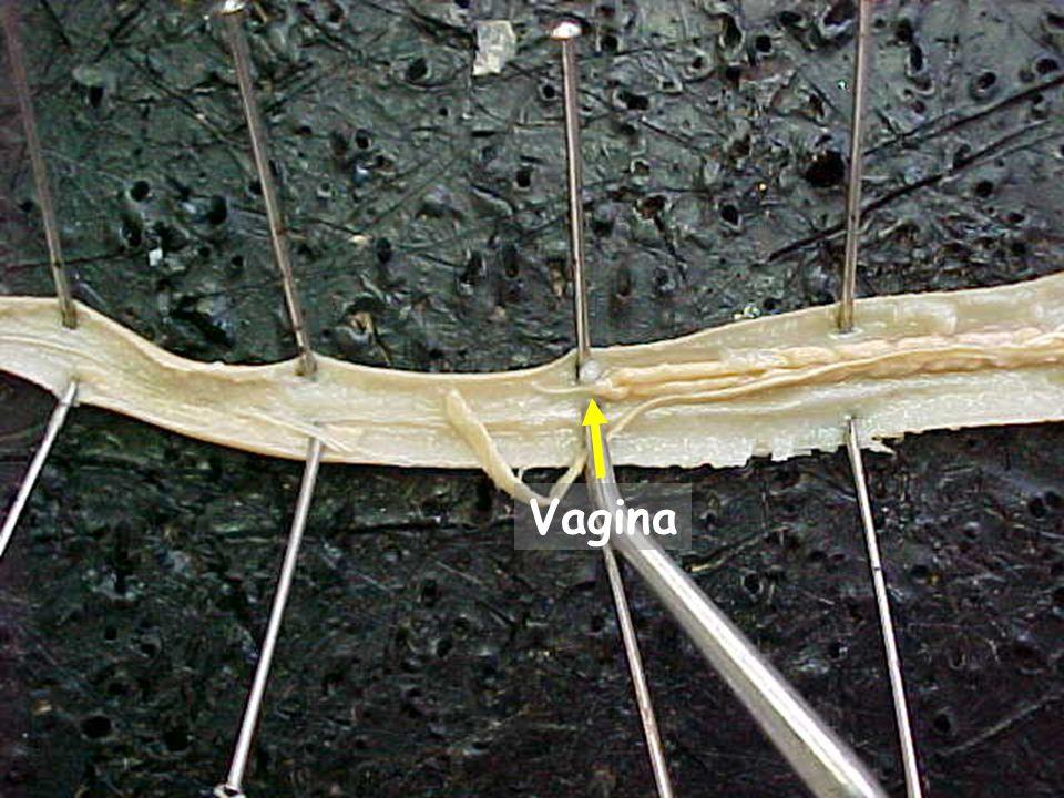 26 Vagina