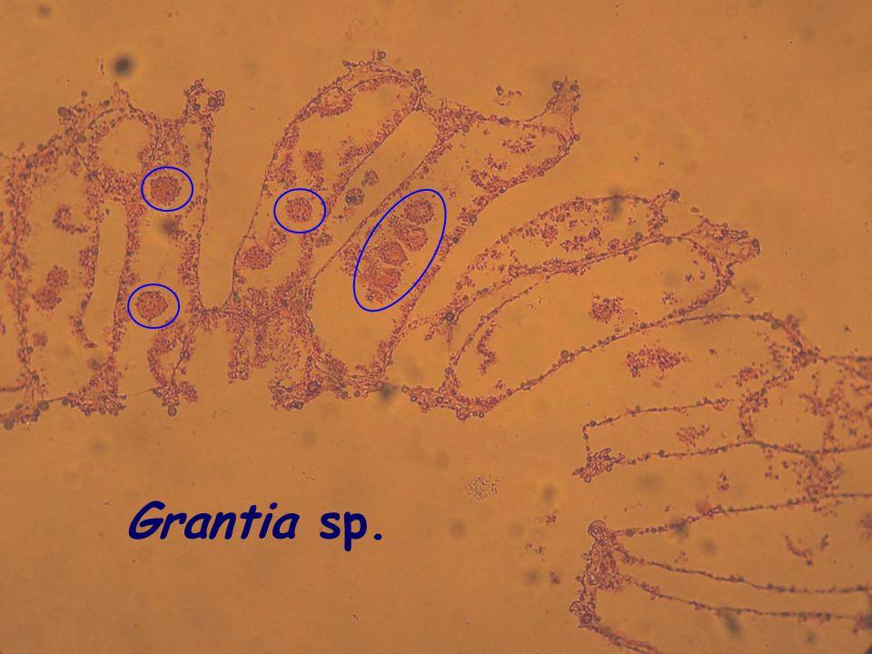 27 Grantia sp.