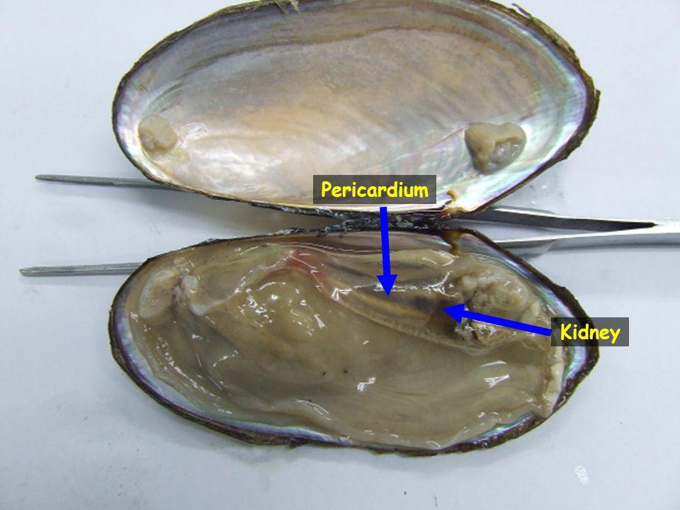 Kidney Pericardium