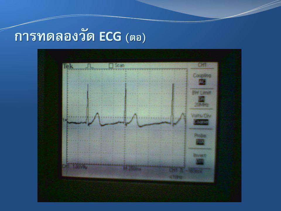 การทดลองวัด ECG ( ต่อ )