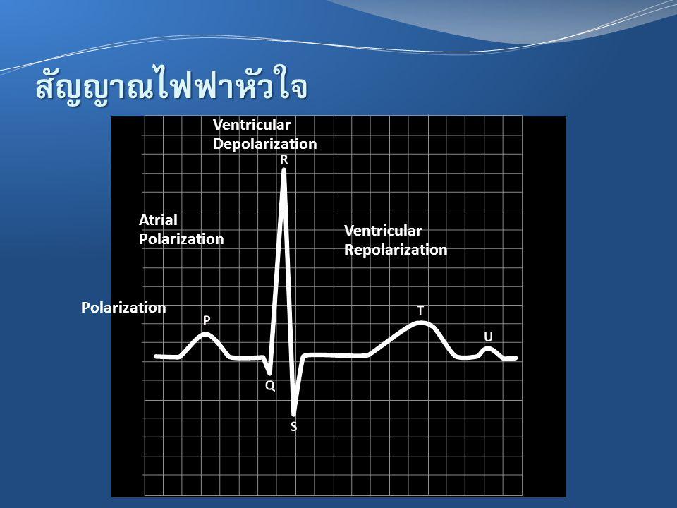 สัญญาณไฟฟ้าหัวใจ Polarization Atrial Polarization Ventricular Depolarization Ventricular Repolarization